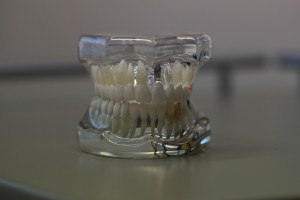 Tooth model for restoration