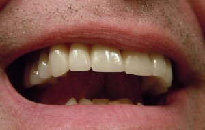 Dental Veneers Asheville